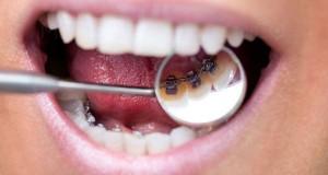 Appareil dentaire lingual